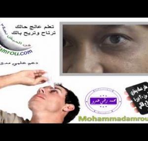 Embedded thumbnail for  علاج انسداد القناة الدمعية