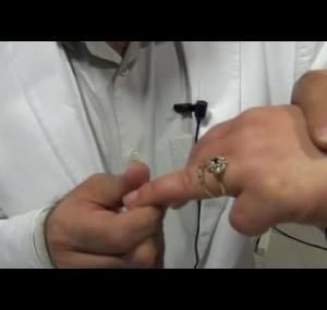 Embedded thumbnail for  اضرار خاتم الزواج الصحية