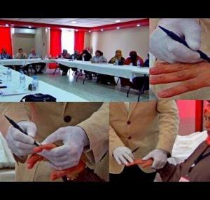 Embedded thumbnail for علاج المسالك البولية و أسفل الظهر أمام الناس و الكاميرا